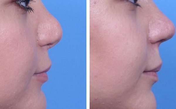 неудачная ринопластика фото до и после